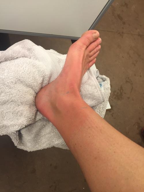 Slik så foten min ut etter en lang varm dusj. Ikke så ildrød som rett etter svømmingen.